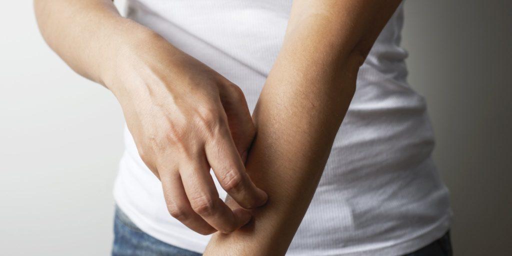 eczemă pielea uscată mâncărime erupții