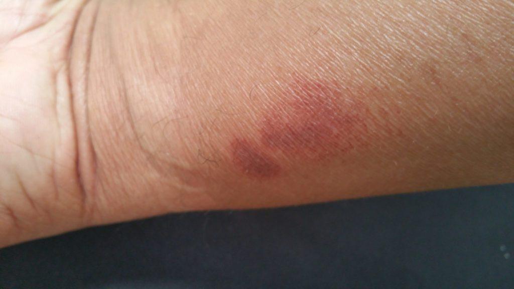 Arsurile sunt caracterizate de leziuni la nivelul pielii ca urmare a expunerii la o sursă de căldură, cauzând deteriorarea celulelor din zona afectată